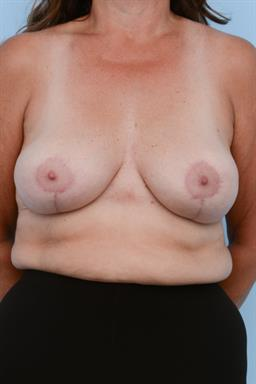 Breast Reduction case #357