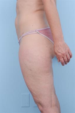 Liposuction case #361