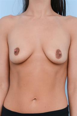 Breast Augmentation case #382