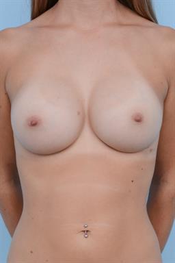 Breast Augmentation case #387