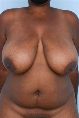 Breast Reduction case #392