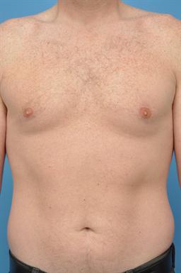 Male Breast Reduction / Gynecomastia case #43