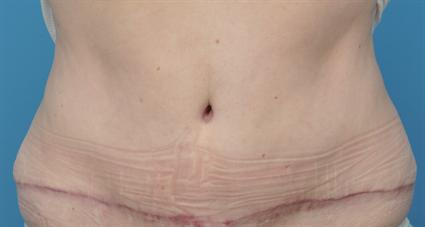 Tummy Tuck Case 50 The Cosmetic Surgery Clinic
