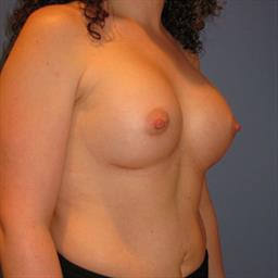 Breast Augmentation case #6