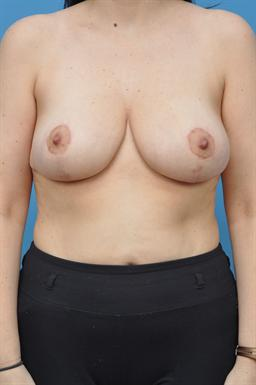 Breast Reduction case #74